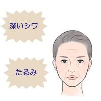 シワ女性1