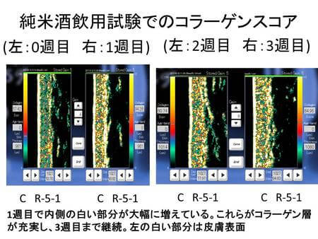 日本酒飲用によるコラーゲン増加